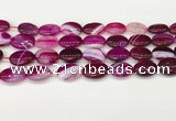 CAA4663 15.5 inches 13*18mm oval banded agate beads wholesale