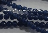 CCT1122 15 inches 2mm round tiny cats eye beads wholesale