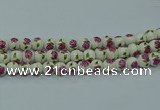 CPB742 15.5 inches 8mm round Painted porcelain beads
