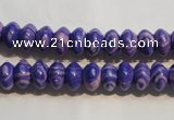 CTU2268 15.5 inches 5*8mm rondelle synthetic turquoise beads